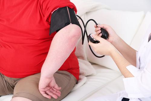 Quem sofre de doenças coronárias deve fazer cirurgia bariátrica?