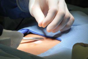 cirurgia de hérnia umbilical