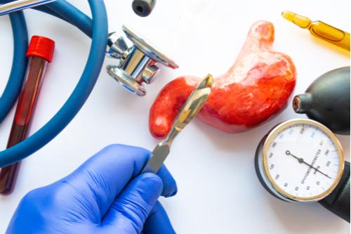7 perguntas frequentes sobre cirurgia bariátrica