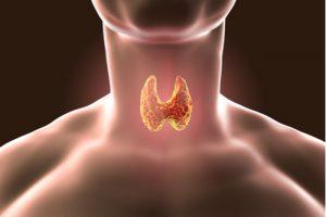tireoidectomia